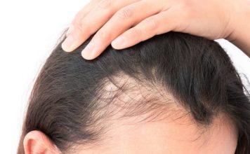 Top 10 Hair Loss Treatment Centres in KL & Selangor