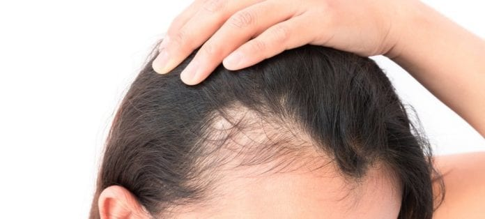 Top 10 Hair Loss Treatment Centres in KL & Selangor